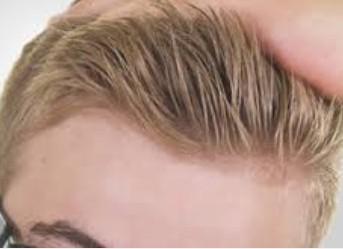 薄毛対策のスカルプケア