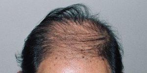 50代 薄毛.ハゲ 画像