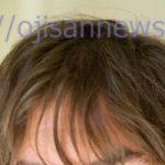 これって若ハゲ?前髪がスカスカに!初期薄毛の対策方法・画像あり