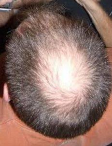 頭頂部薄毛 てっぺんはげ つむじハゲ