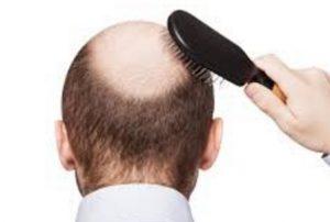 頭頂部薄毛 てっぺんはげ つむじハゲ 画像