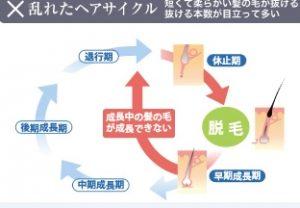 ヘアサイクルとAGAの関係
