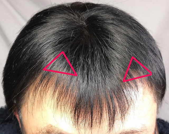 M字ハゲ M字薄毛 貼る 増毛