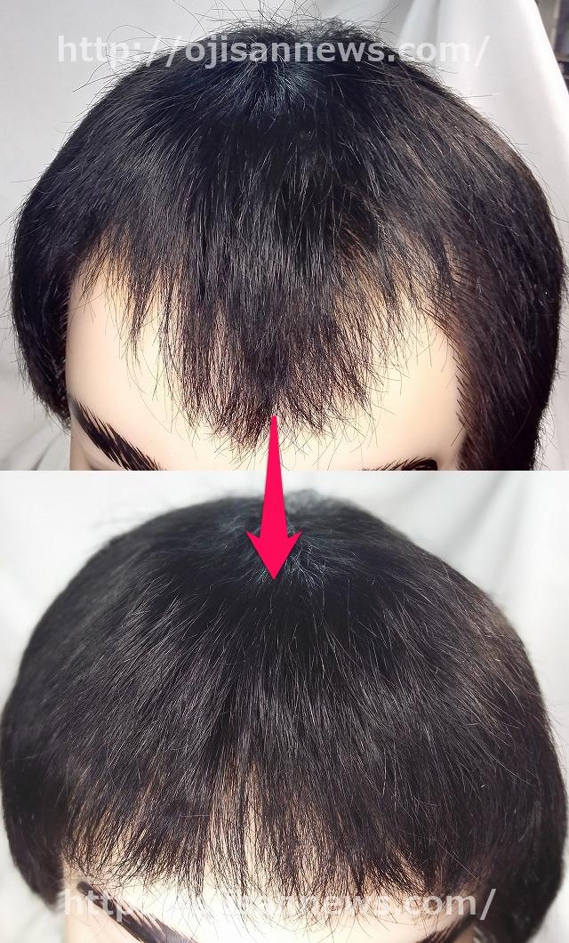 貼る増毛 貼り付け増毛 M字