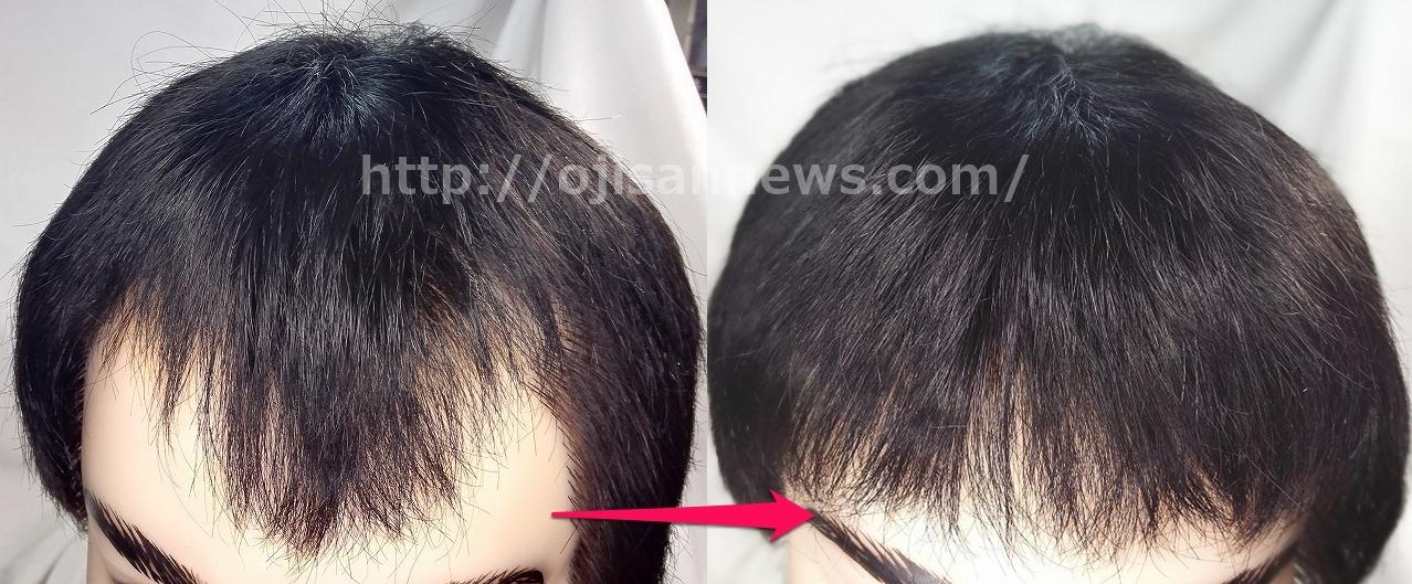 M字ハゲ 貼る増毛 貼り付け増毛
