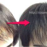 M字ハゲ 貼り付け増毛・貼る増毛