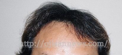 若ハゲ 髪の毛スカスカ 画像