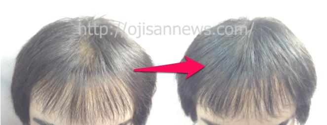 前髪スカスカ、M字ハゲ。薄毛、ハゲに1000本増毛!【画像あり】