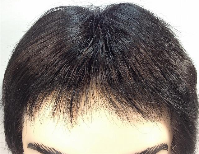 広くなったオデコを狭くする。 生え際に増毛