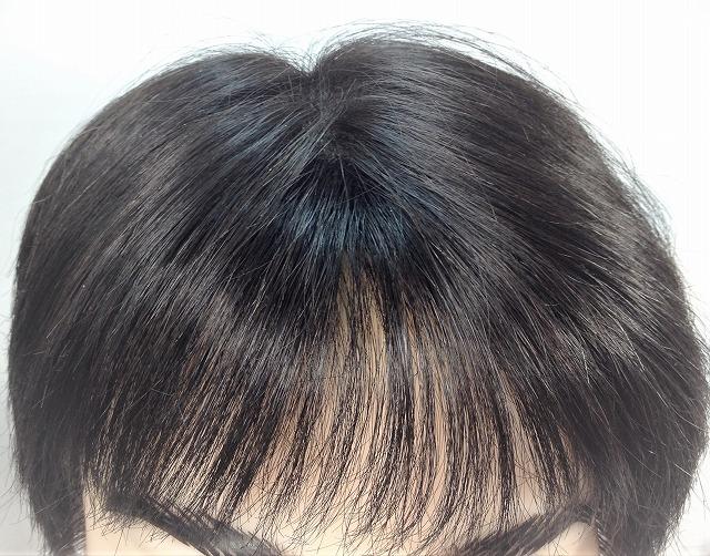 広いオデコを狭くする。生え際に増毛