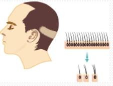 ・FUT方式「切る、メスを使う自毛植毛」