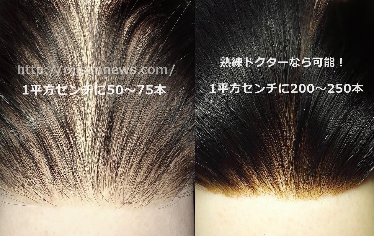 生え際 前髪 後退 薄毛 増毛