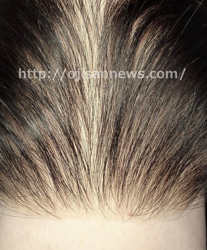 髪の密度 スカスカ