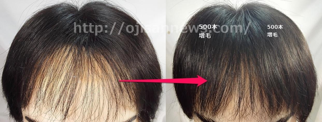 増毛 1000本 500本 前髪 スカスカ 前髪薄い