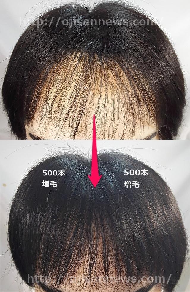 薄くなった前髪 増毛 1000本