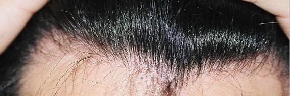 M字ハゲ 植毛