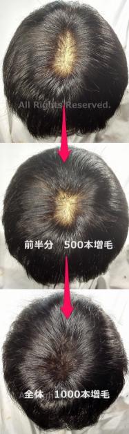 頭頂部 分け目 つむじ 薄毛